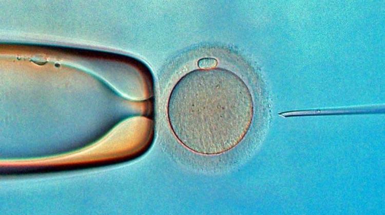 طريقة الحقن المجهري (حقن النطاف داخل خلية البويضة ICSI)