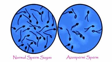 COS'È L'AZOSPERMIA E COME VIENE TRATTATO?