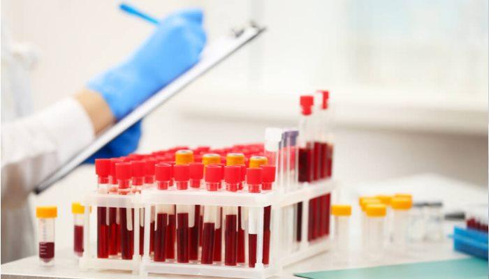 Sperm donörlerine hangi testler yapılır?